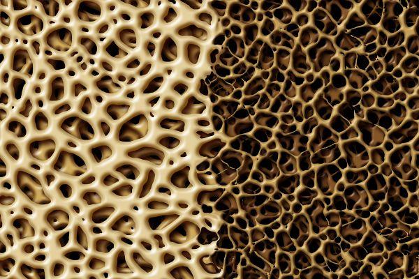 Osteoporosis: Risk Factors, Diagnosis, Prevention & Treatment