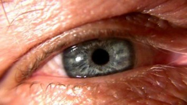 Dry Eye: Causes and Treatments